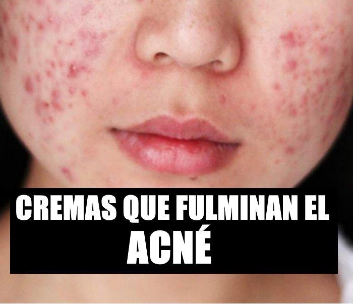 Crema para manchas de acne neutrogena